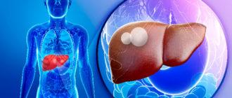 Киста на печени – симптомы заболевания и оптимальные методы лечения