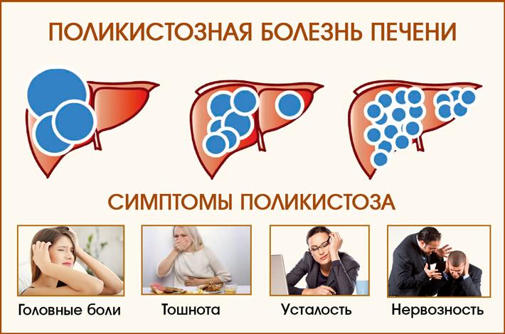 Поликистоз печени: симптоматика