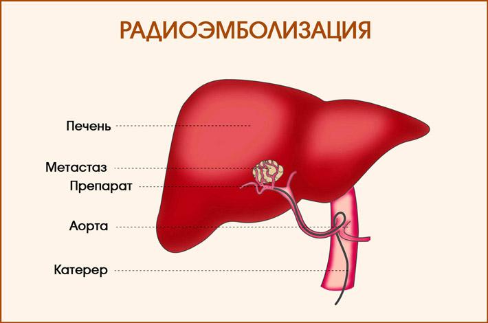 Радиоэмболизация