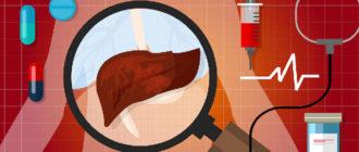 Лечение кавернозной гемангиомы печени