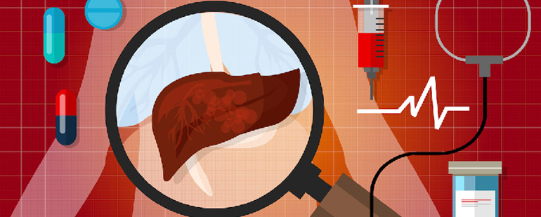 Гемангиома печени симптомы - Всё о печени