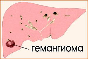 Опухоль в печени