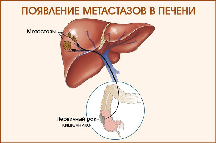 Как появляются метастазы в печени
