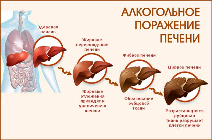 Дегенеративные изменениям в печени