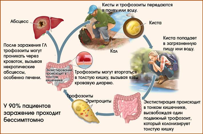 Заражение амебиозом