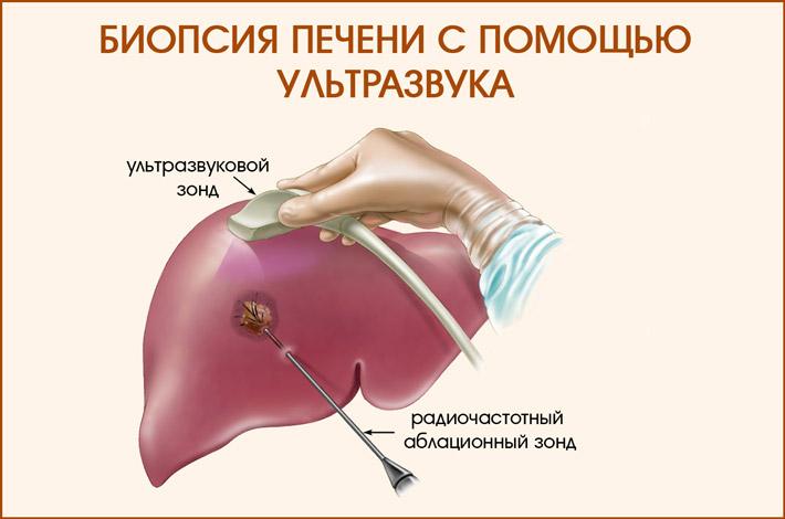 Как проводится биопсия