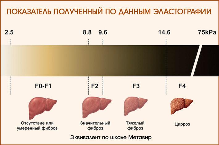 Результаты эластографии