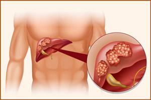 Раковая опухоль в печени