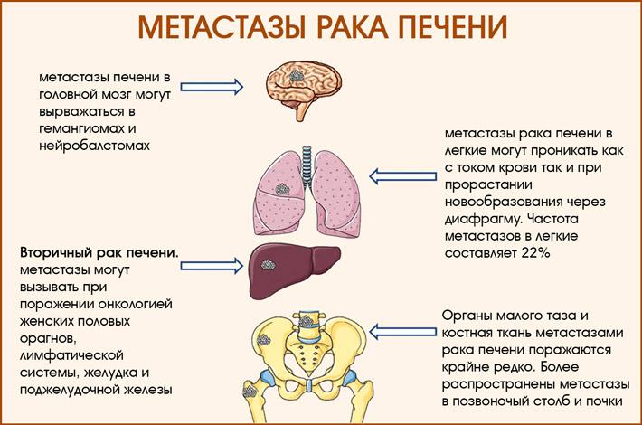 Метастазирование рака печени