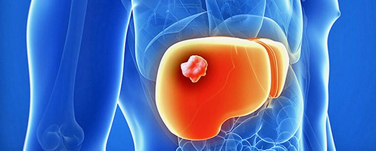 Метастазы в печени симптомы перед смертью