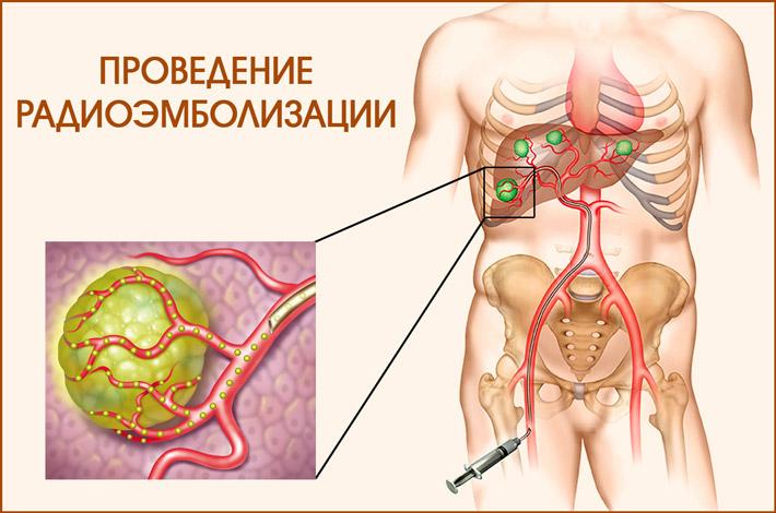 Процедура радиоэмболизации