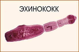 Глист эхинококк