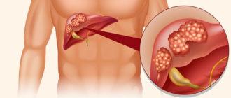 Как вылечить рак печени