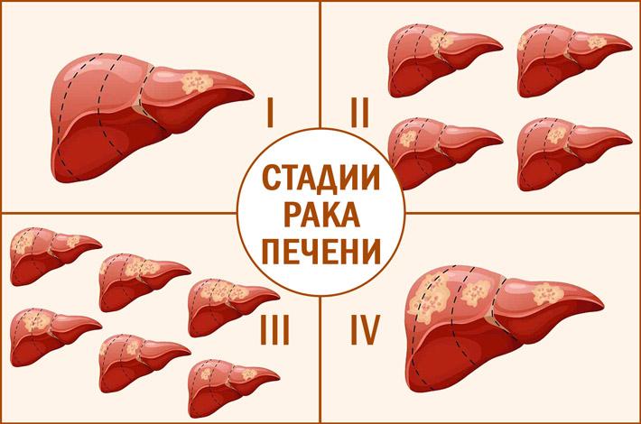 Рак печени на разных стадиях