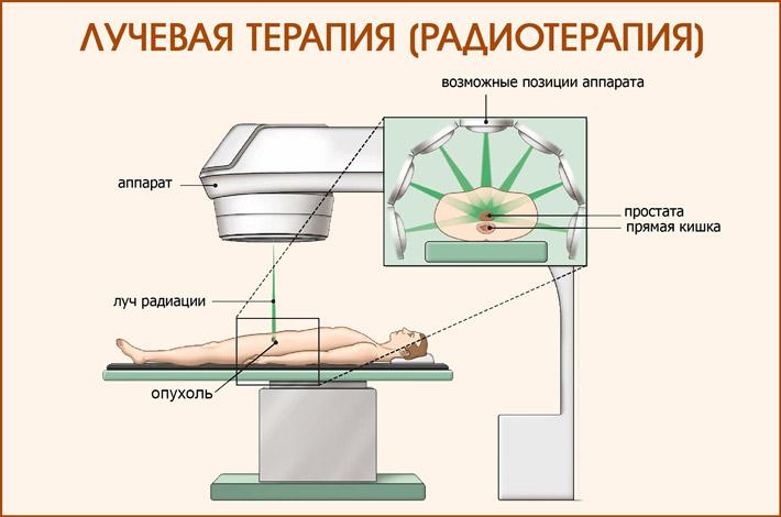 Радиотерапия печени