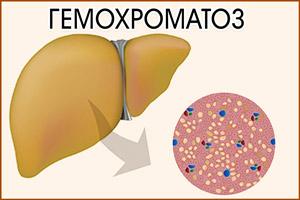 Гемохроматоз в печени