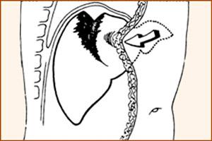 Открытая травма печени