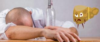 Цирроз печени от алкоголя: признаки и лечение