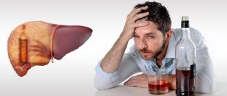 Алкогольный гепатит печени: методы лечения