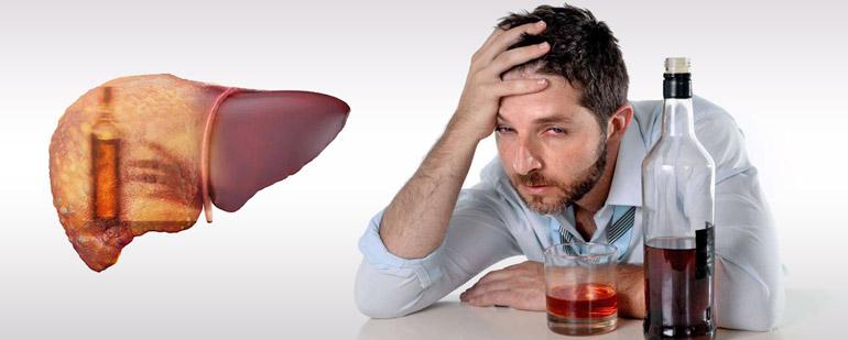 Симптомы и лечение алкогольного гепатита печени