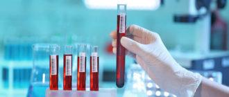 Анализ крови на гепатит В