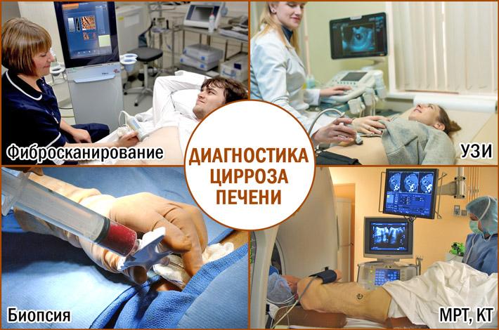 Диагностика цирроза печени