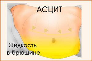 Жидкость в брюшной полости