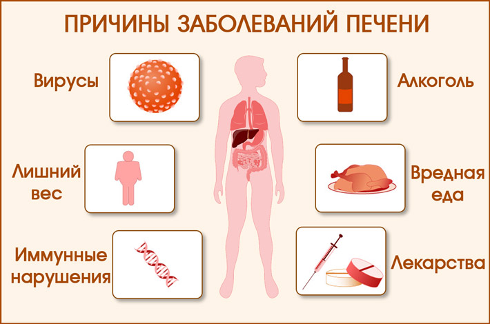 Причины заболеваний печени