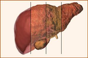 Злокачественная опухоль в печени