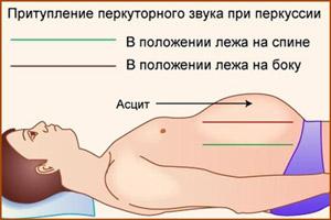 Водянка в брюшной полости