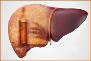 Алкогольный цирроз