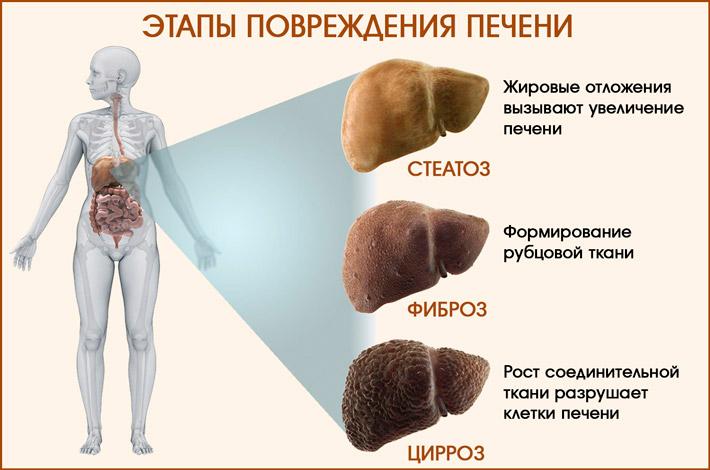 Этапы повреждения печени