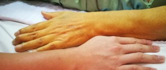 Проведение грамотной дифференциальной диагностики желтух