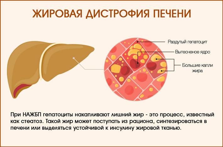 Скопление жира в печени