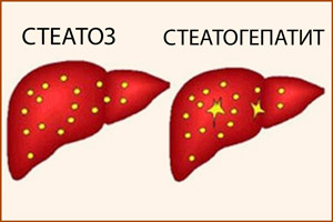 Стеатоз и стеатогепатит