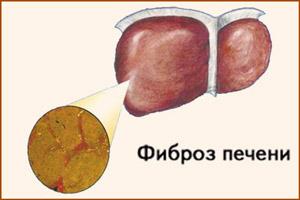 Фиброзная печень