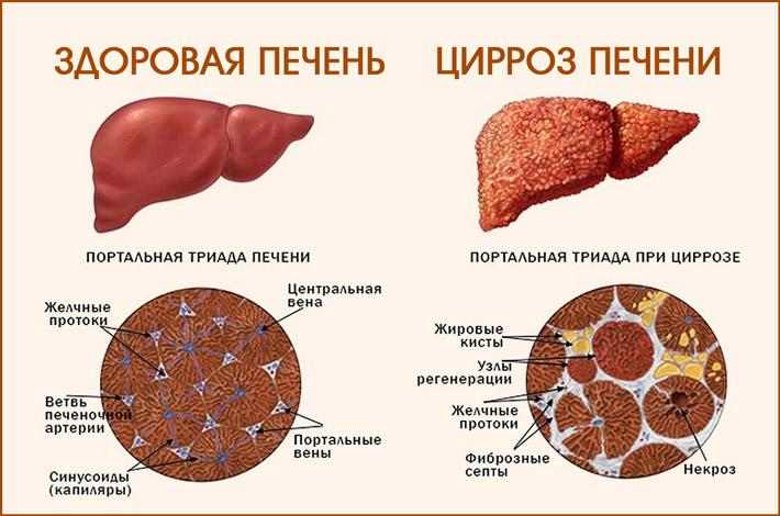 Печень с циррозом