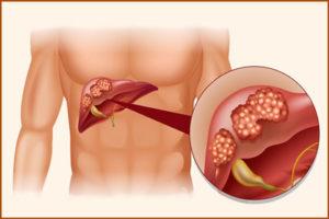 Цирроз печени: лечение