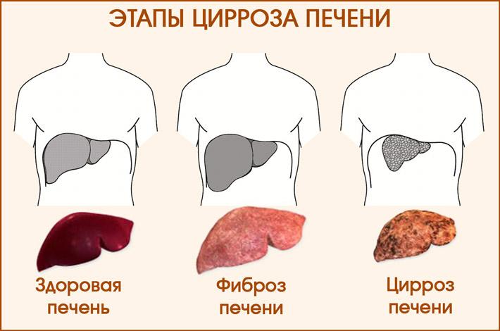 Этапы цирроза печени