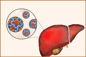 Осложнения при гепатите Б