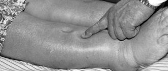 Отеки при циррозе печени
