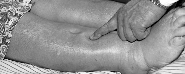 Отеки при заболеваниях печени — schket