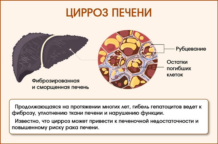 Печень при циррозе