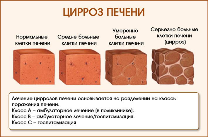 Этапы образования цирроза