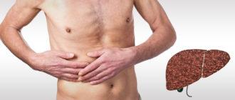 Токсический цирроз печени: лечение, прогноз на выздоровление