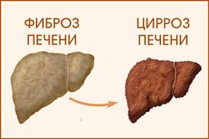 Фиброз переходящий в фиброз печени