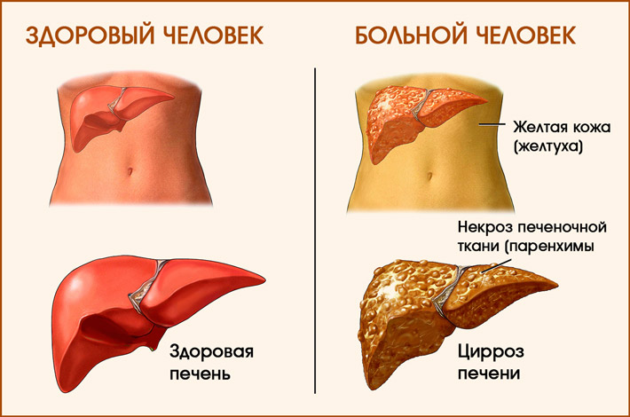 Цирроз печени токсический