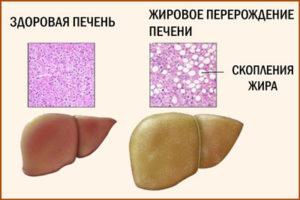 Жировой гепатоз печени: симптомы