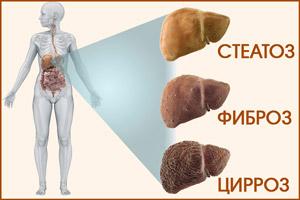 Течение болезни гепатита С