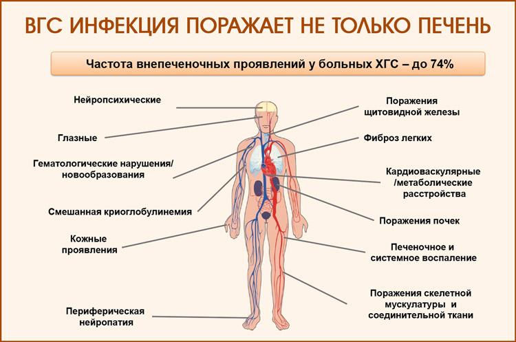 Гепатит С: осложнения на органы